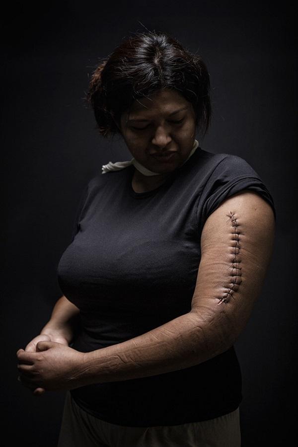 Mariana, 29 años, Honduras. Ella fue asaltada durante su travesía como una persona indocumentada a través de México, con la intención de llegar a Estados Unidos. Fue empujada por asaltantes a un barranco, y fue capaz de evitar un intento de violación. El compañero de viaje de Mariana fue golpeado cuando trató de defenderla. Ella fue trasladada a un hospital en Tenosique, Tabasco, y luego otros tres al no realizarle la operación necesaria. 15 días pasaron y la operación se convirtió en urgente. El último médico que la vio sólo solicitó una nueva férula y una llamada a la inmigración.