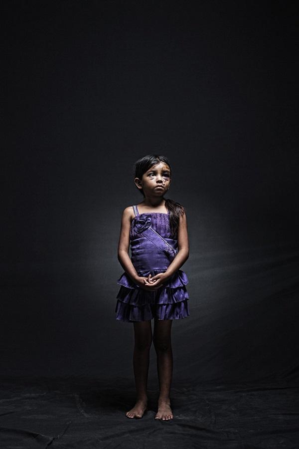 Yenifer, 8, Guatemala. Ella sufrió, junto con su hermana de 12 años y otros 11 inmigrantes, un accidente automovilístico en Chiapas. El accidente fue causado por el neumático delantero de la camioneta en la que viajaban. La única persona que murió era el conductor. Querían llegar a la U.S.