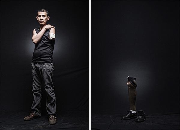 Armando, El Salvador. Su destino era Estados Unidos, pero fue deportado en Baja California mientra viajaba de polison en un tren. El reintento cruzar México de nuevo pero en Tenosique, Tabasco, callo del tren sufriendo amputación de un brazo.