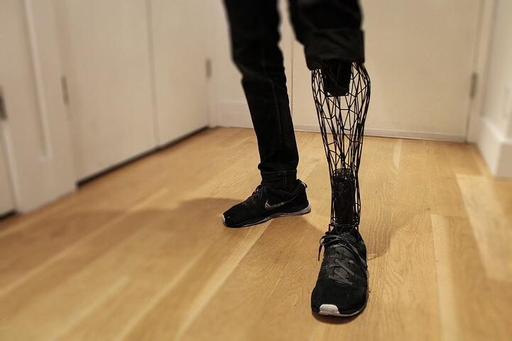 prótesis de pierna hecha con impresión 3D