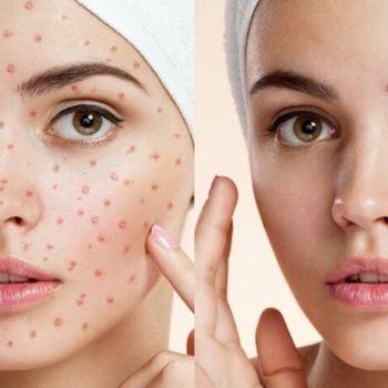 Tutorial Photoshop: 5 Técnicas para quitar manchas y arrugas de piel